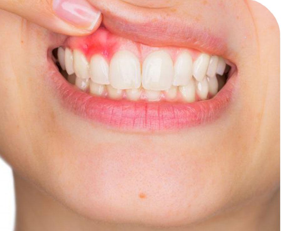 Вопрос депульпирования зубов