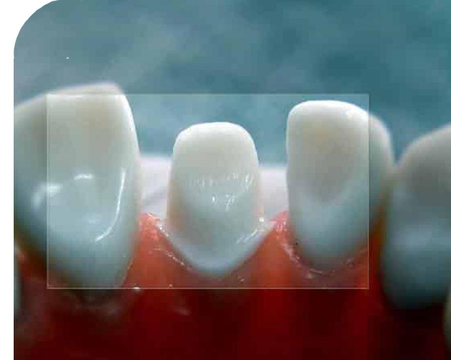 Обточка опорных зубов