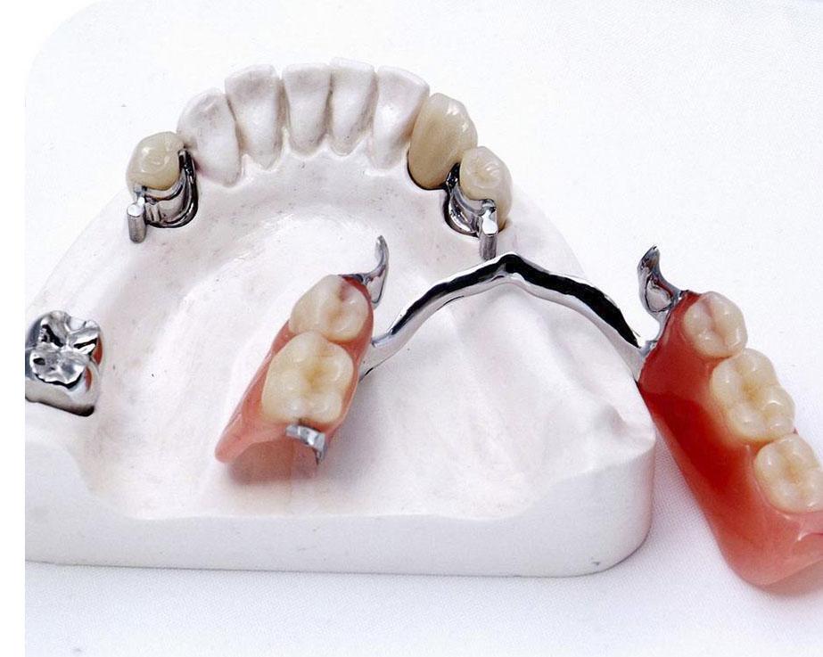 Особенности конструкции бюгельного протеза