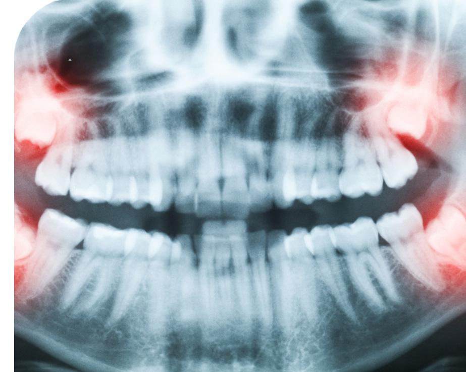 Почему нужно удалить зуб?